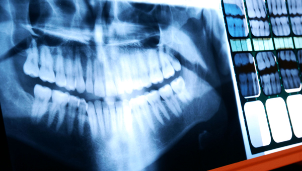 Photo 16 | Fat Dentistry
